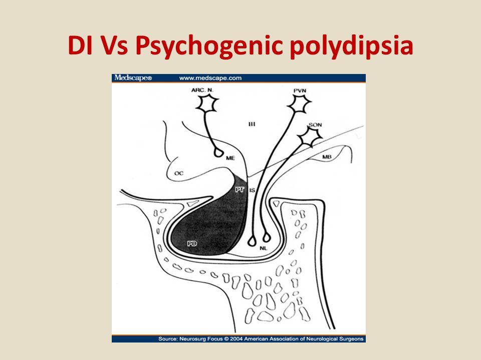 DI Vs Psychogenic polydipsia