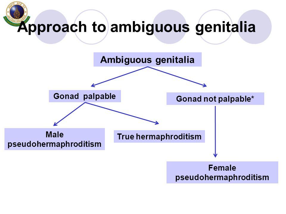 Approach to ambiguous genitalia Ambiguous genitalia Gonad palpable Gonad not palpable* Male pseudohermaphroditism True hermaphroditism Female pseudohe