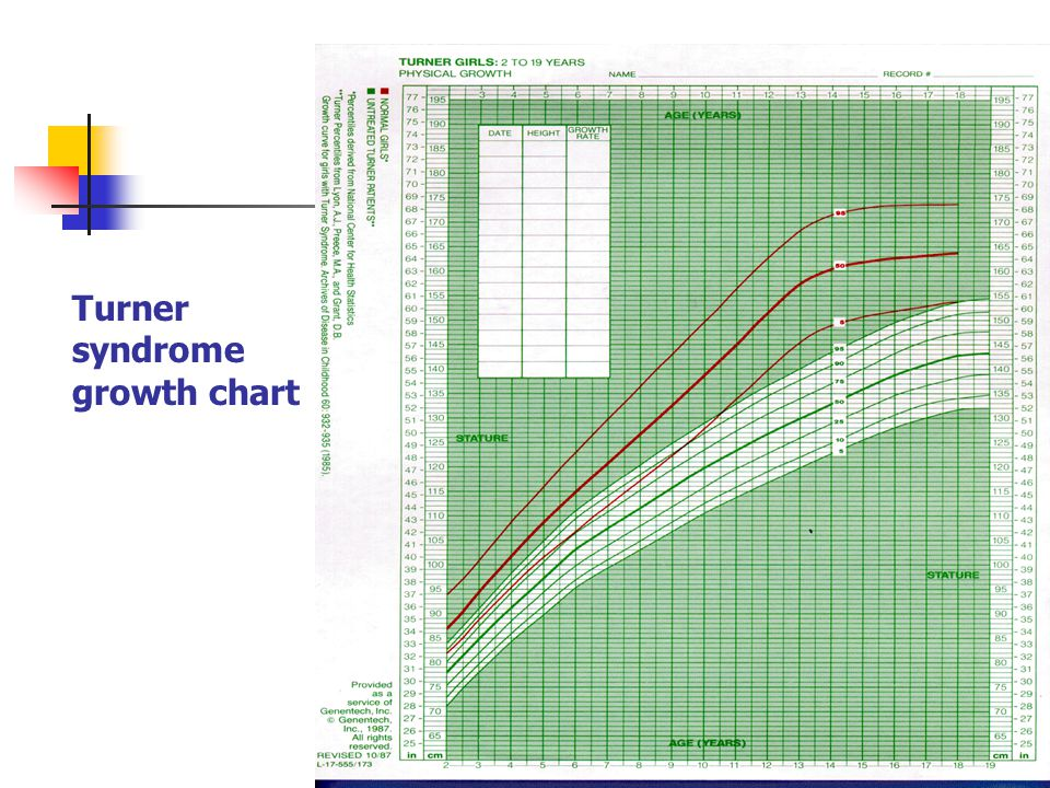 Turner syndrome growth chart