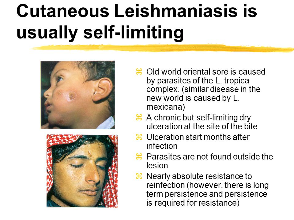 Cutaneous Leishmaniasis is usually self-limiting zOld world oriental sore is caused by parasites of the L.