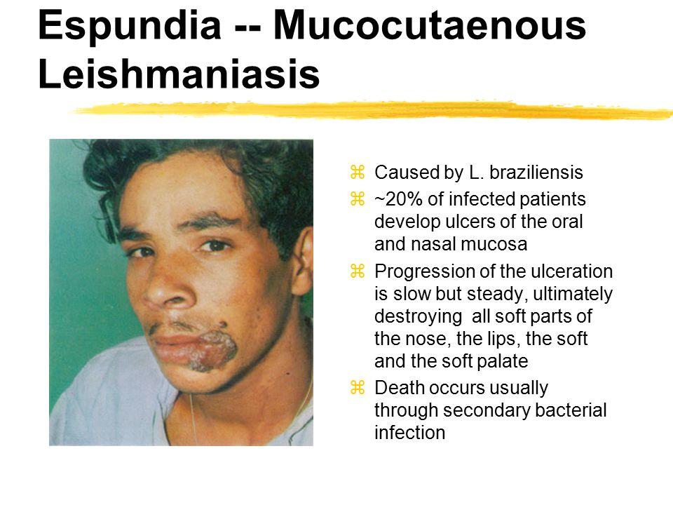 Espundia -- Mucocutaenous Leishmaniasis zCaused by L.