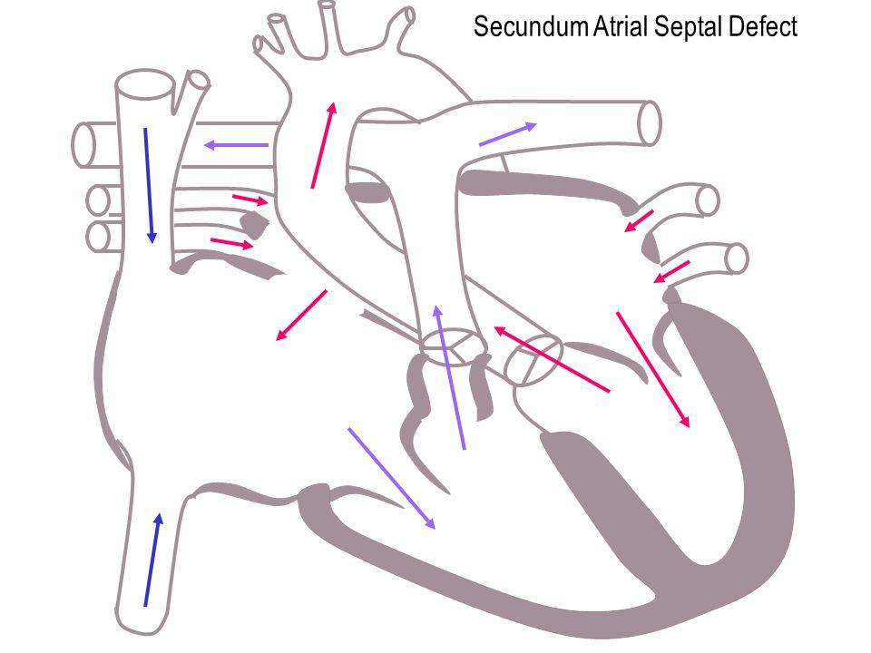 Secundum Atrial Septal Defect