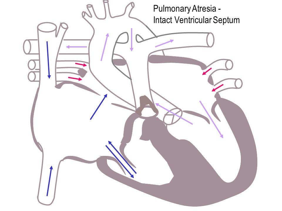 Pulmonary Atresia - Intact Ventricular Septum