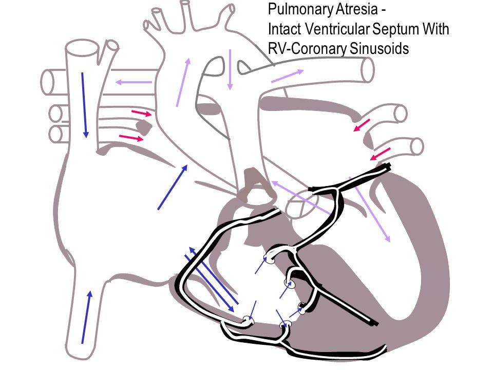 Pulmonary Atresia - Intact Ventricular Septum With RV-Coronary Sinusoids
