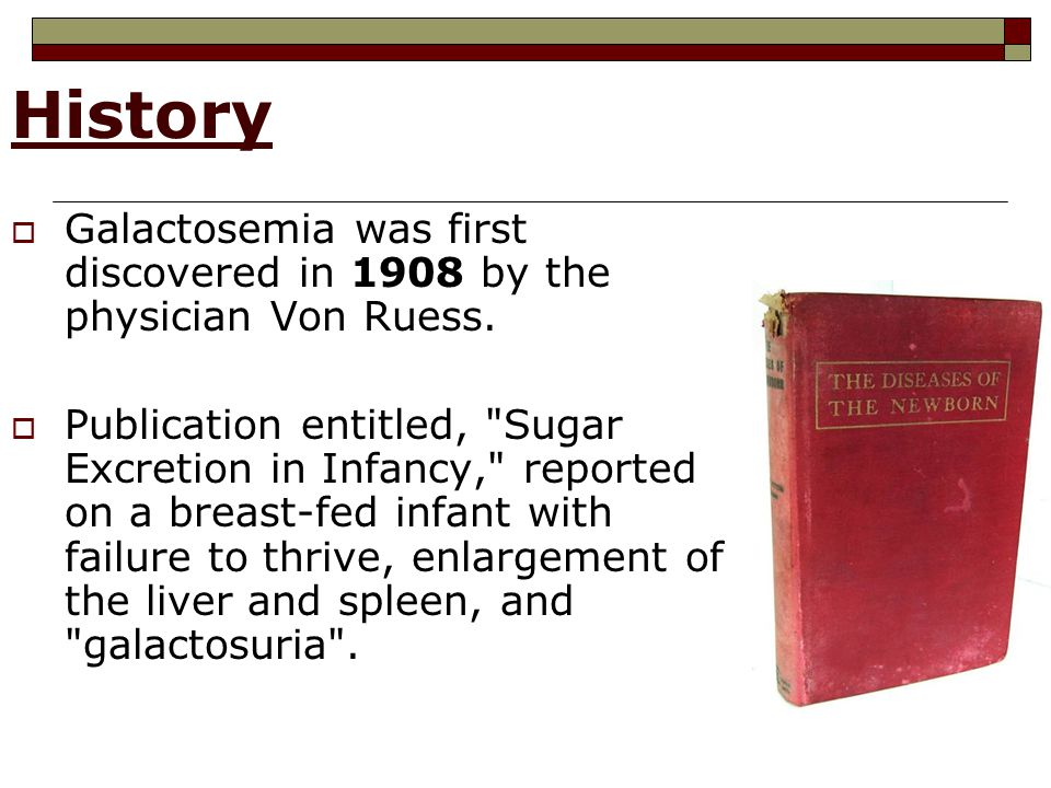 History  Galactosemia was first discovered in 1908 by the physician Von Ruess.  Publication entitled,