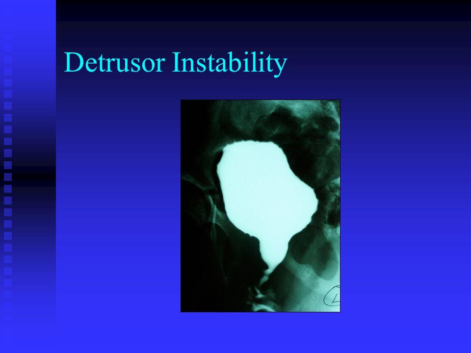 Detrusor Instability