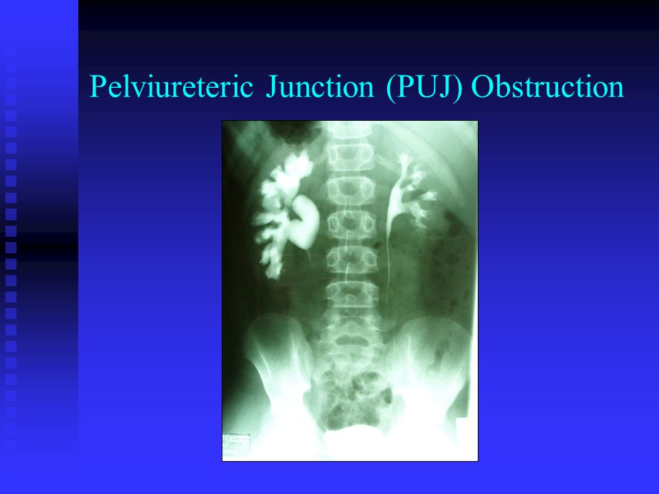 Pelviureteric Junction (PUJ) Obstruction