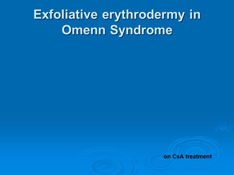 Exfoliative erythrodermy in Omenn Syndrome on CsA treatment
