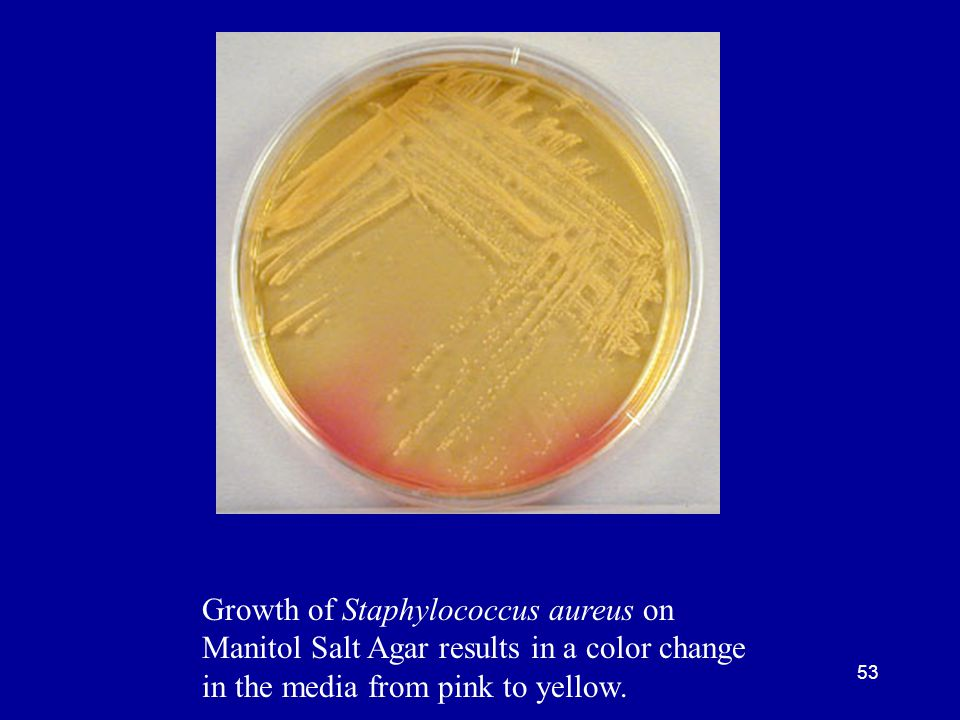 53 Growth of Staphylococcus aureus on Manitol Salt Agar results in a color change in the media from pink to yellow.