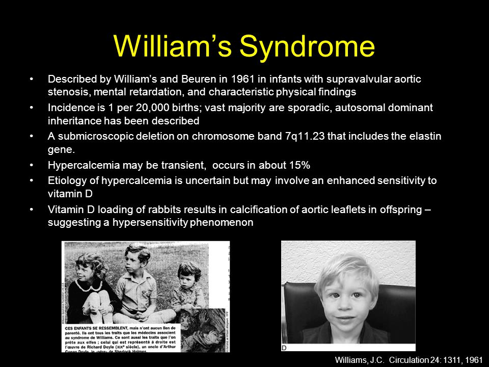 William's Syndrome Described by William's and Beuren in 1961 in infants with supravalvular aortic stenosis, mental retardation, and characteristic physical findings Incidence is 1 per 20,000 births; vast majority are sporadic, autosomal dominant inheritance has been described A submicroscopic deletion on chromosome band 7q11.23 that includes the elastin gene.