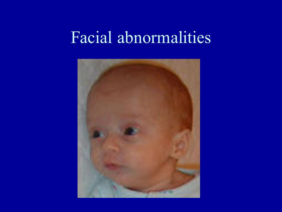 Facial abnormalities