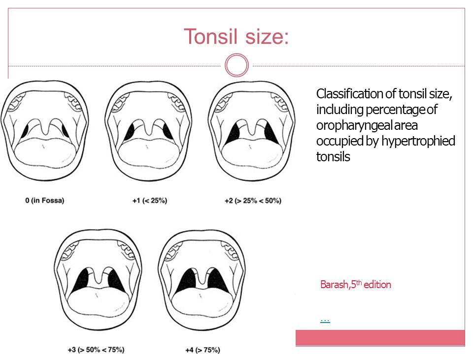 Tonsil size: Classification of tonsil size, including percentage of oropharyngeal area occupied by hypertrophied tonsils … Barash,5 th edition