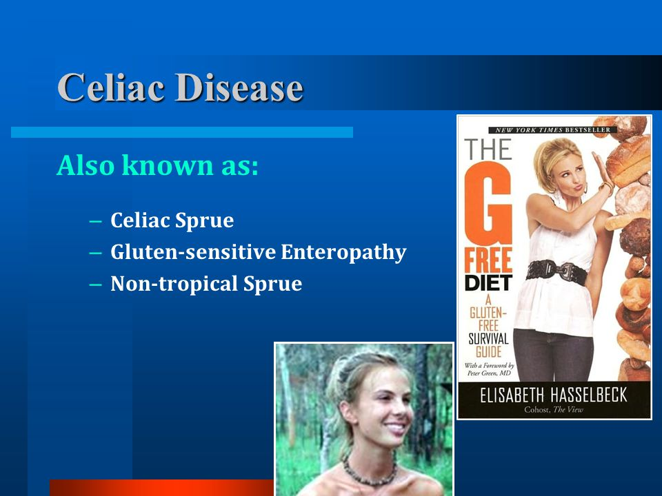 Celiac Disease Also known as: – Celiac Sprue – Gluten-sensitive Enteropathy – Non-tropical Sprue