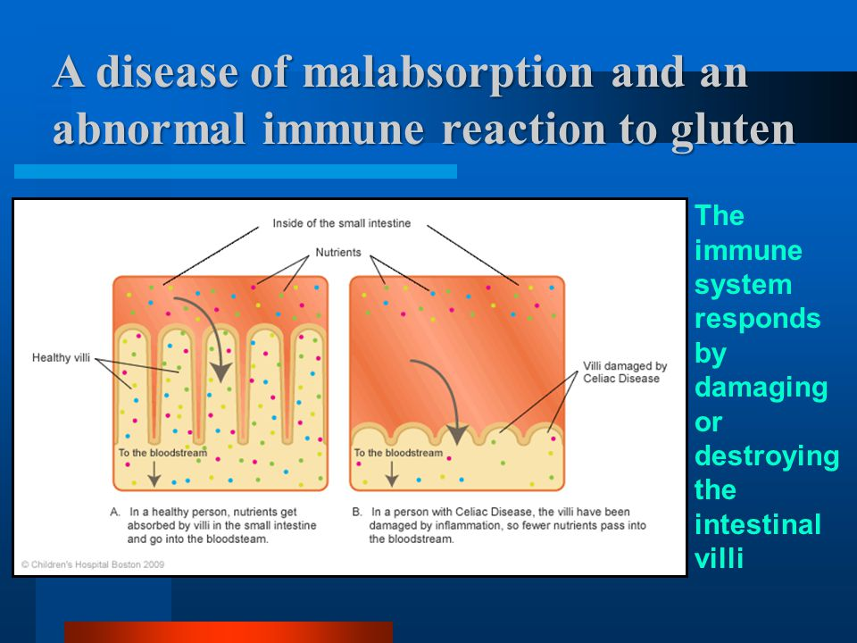 Malabsorption –Results in malabsorption of key nutrients: iron, calcium, folate absorbed in the first part of the small intestine - –Damage further down the small intestinal tract results in malabsorption of: carbohydrates (lactose), fat and fat-soluble vitamins, protein and other nutrients.