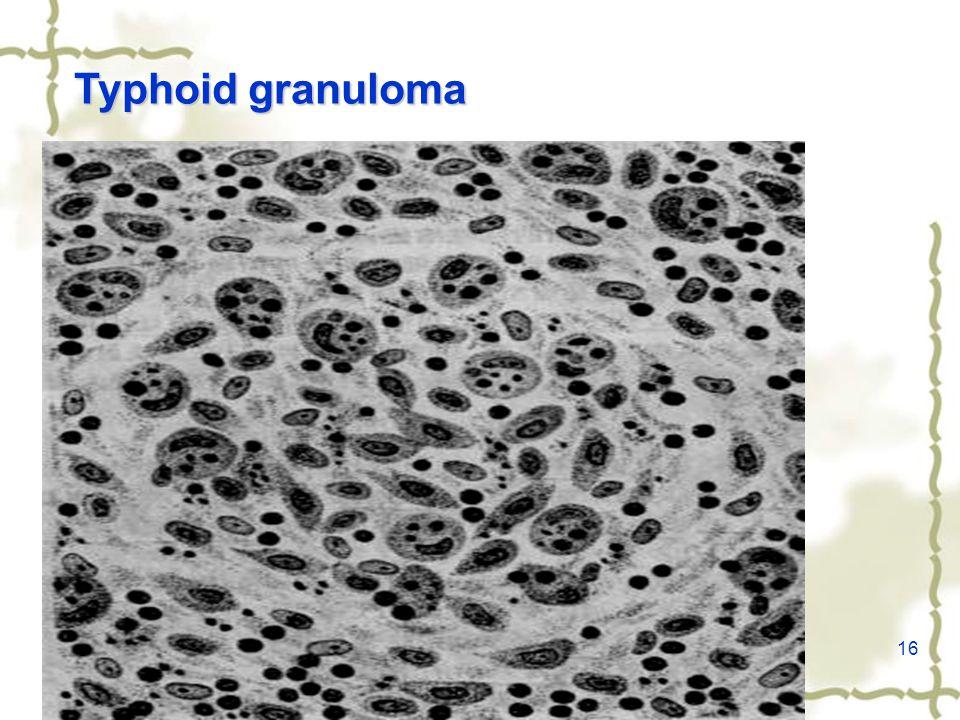 16 Typhoid granuloma