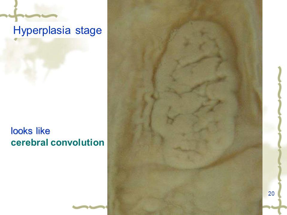 20 Hyperplasia stage looks like cerebral convolution