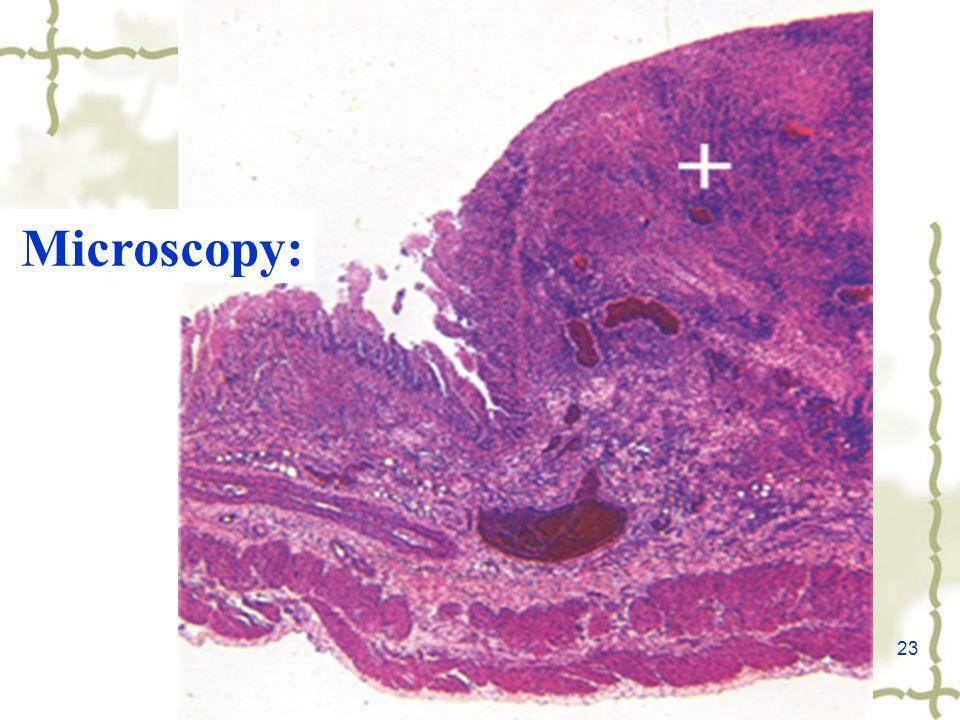 23 Microscopy: