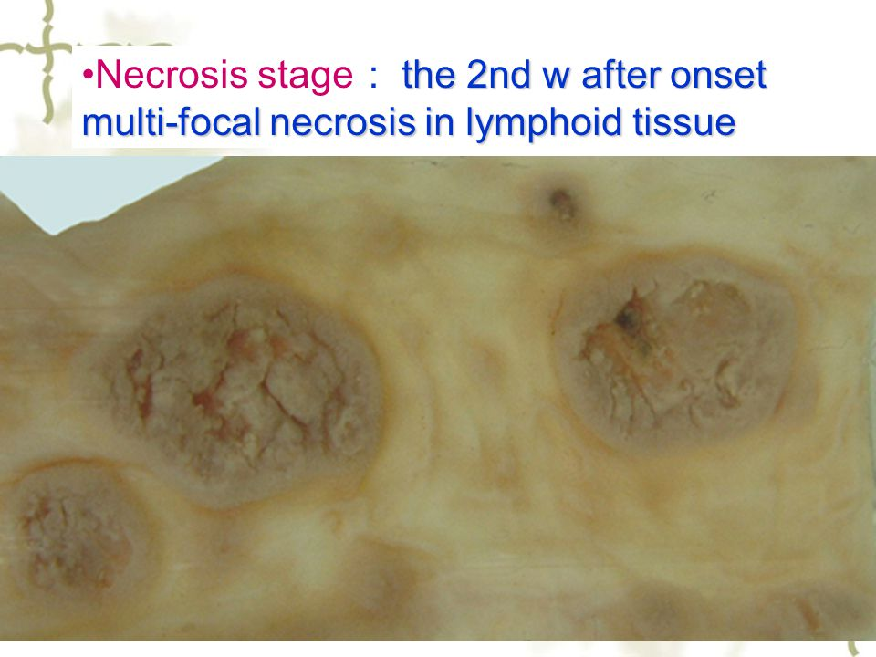 25 the 2nd w after onset multi-focal necrosis in lymphoid tissueNecrosis stage : the 2nd w after onset multi-focal necrosis in lymphoid tissue