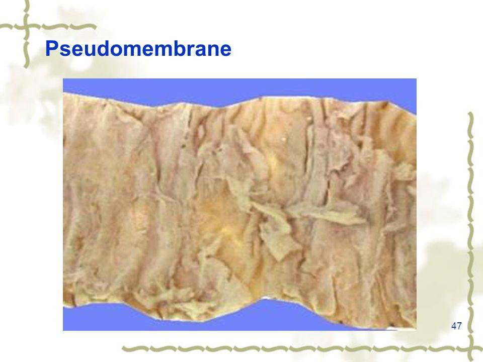 47 Pseudomembrane