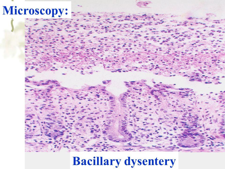 51 Microscopy: Bacillary dysentery