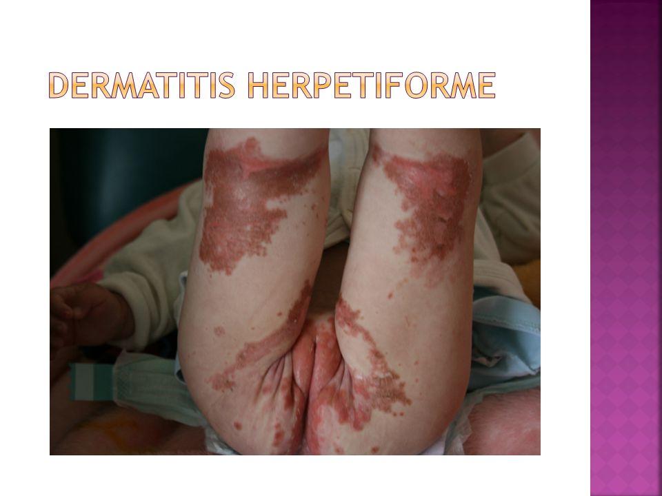  Polyuria  Polydipsia  Glycaemia=459 mg/dl  Ketonuria= +++++  Kussmal respiration  Ph=7.1; HCO3= 4.4 ; HbA1C = 7.4
