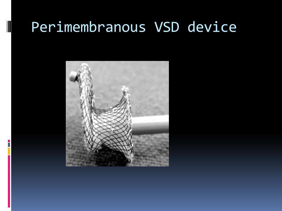 Perimembranous VSD device