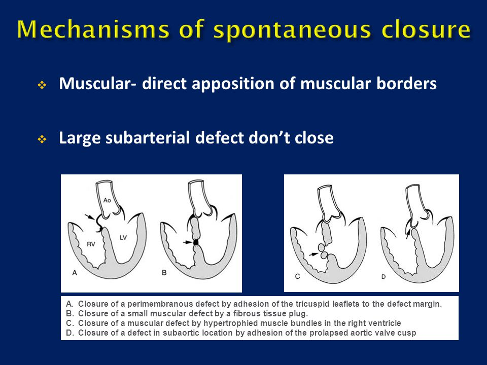 Muscular- direct apposition of muscular borders  Large subarterial defect don't close A.Closure of a perimembranous defect by adhesion of the tricu