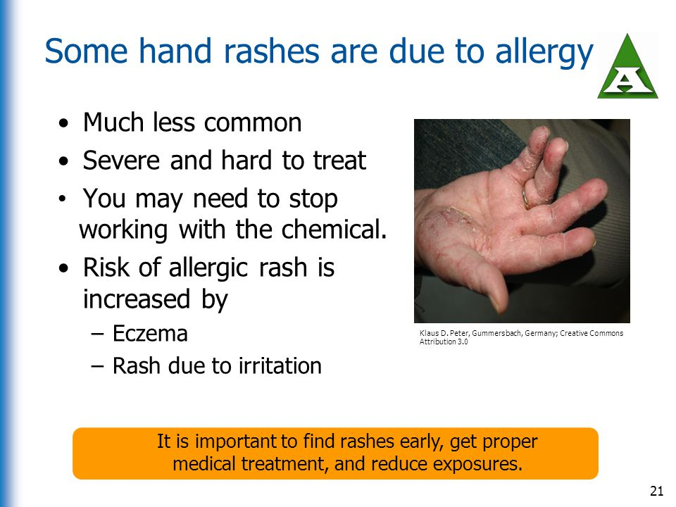 Some hand rashes are due to allergy Much less common Severe and hard to treat You may need to stop working with the chemical. Risk of allergic rash is