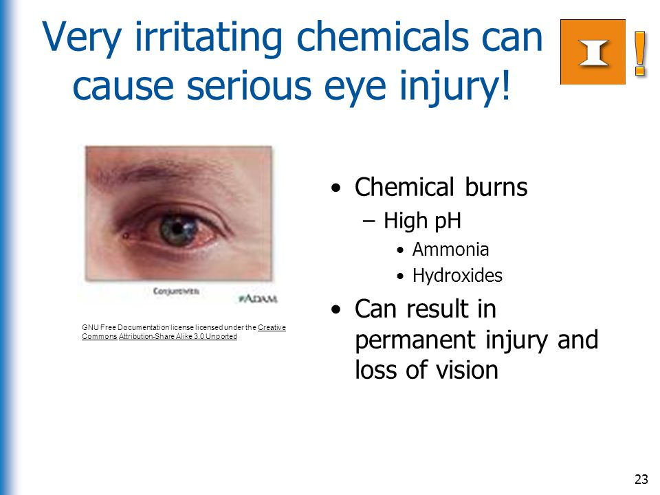 Very irritating chemicals can cause serious eye injury! Chemical burns –High pH Ammonia Hydroxides Can result in permanent injury and loss of vision 2