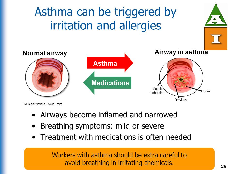 Asthma can be triggered by irritation and allergies Airways become inflamed and narrowed Breathing symptoms: mild or severe Treatment with medications