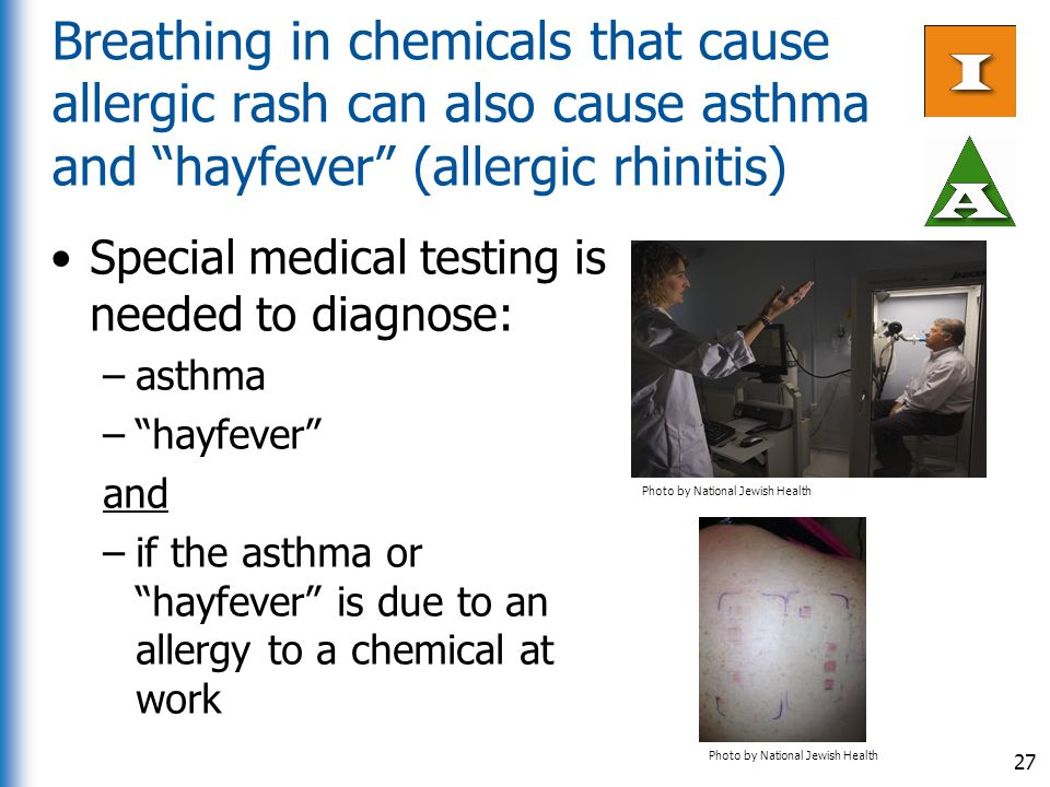 "Breathing in chemicals that cause allergic rash can also cause asthma and ""hayfever"" (allergic rhinitis) Special medical testing is needed to diagnose"