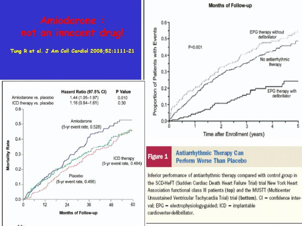 Tung R et al. J Am Coll Cardiol 2008;52:1111–21 Amiodarone : not an innocent drug!