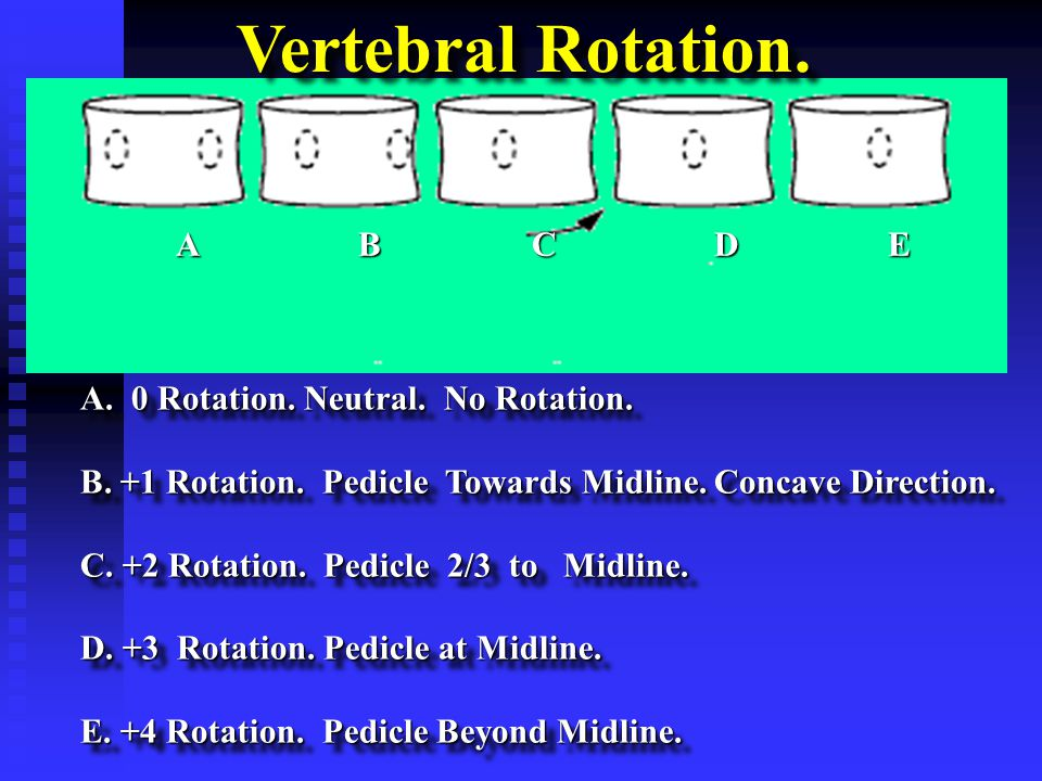 ABCDE A. 0 Rotation. Neutral. No Rotation. B. +1 Rotation.