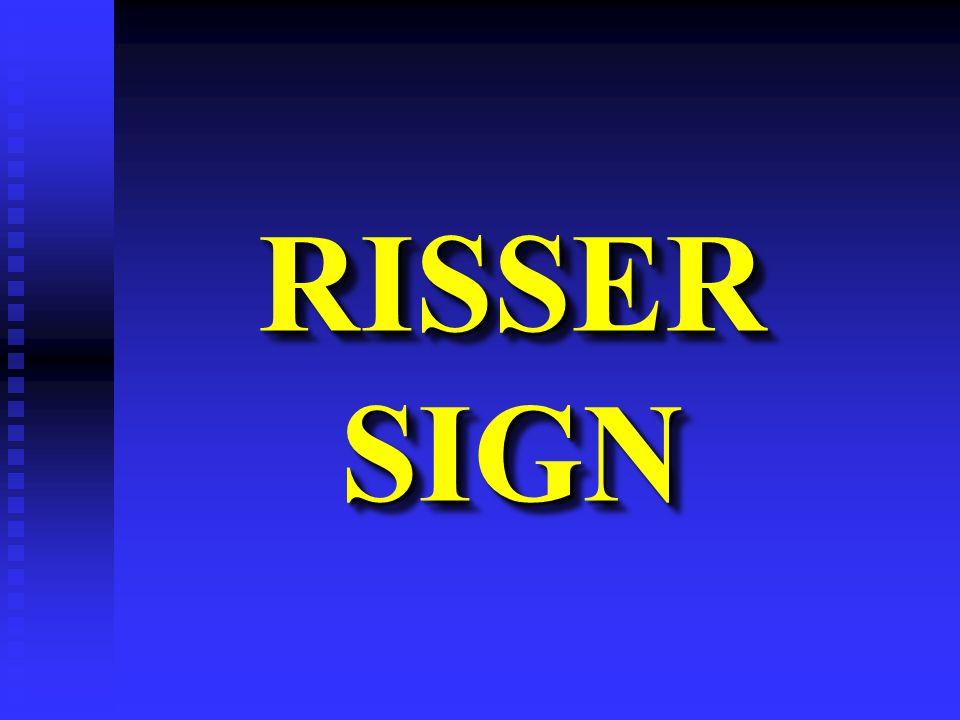 RISSER SIGN