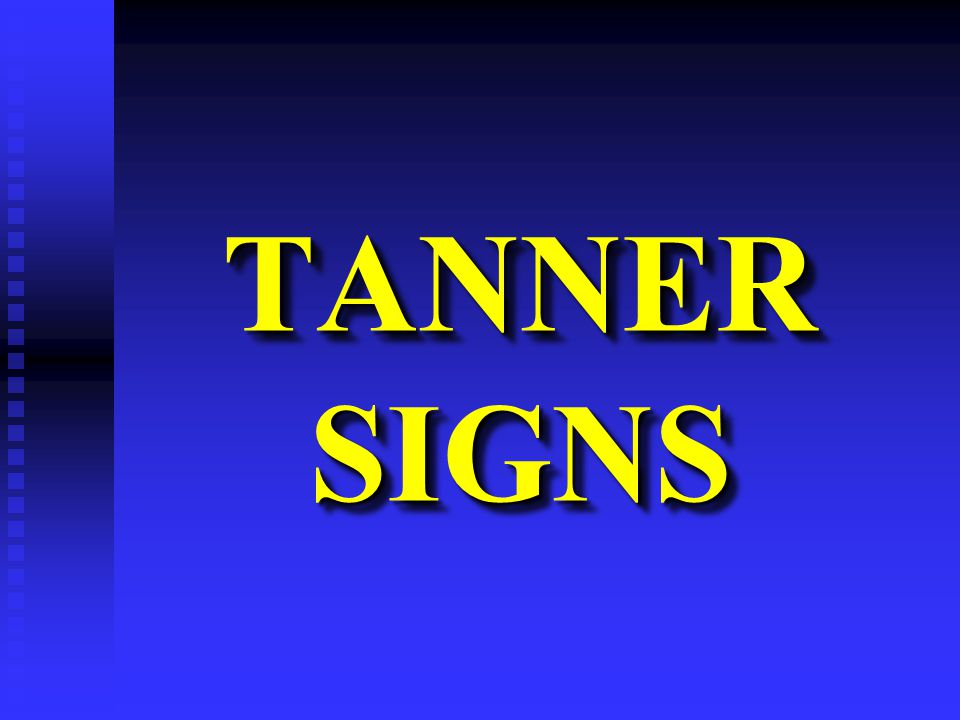 TANNER SIGNS