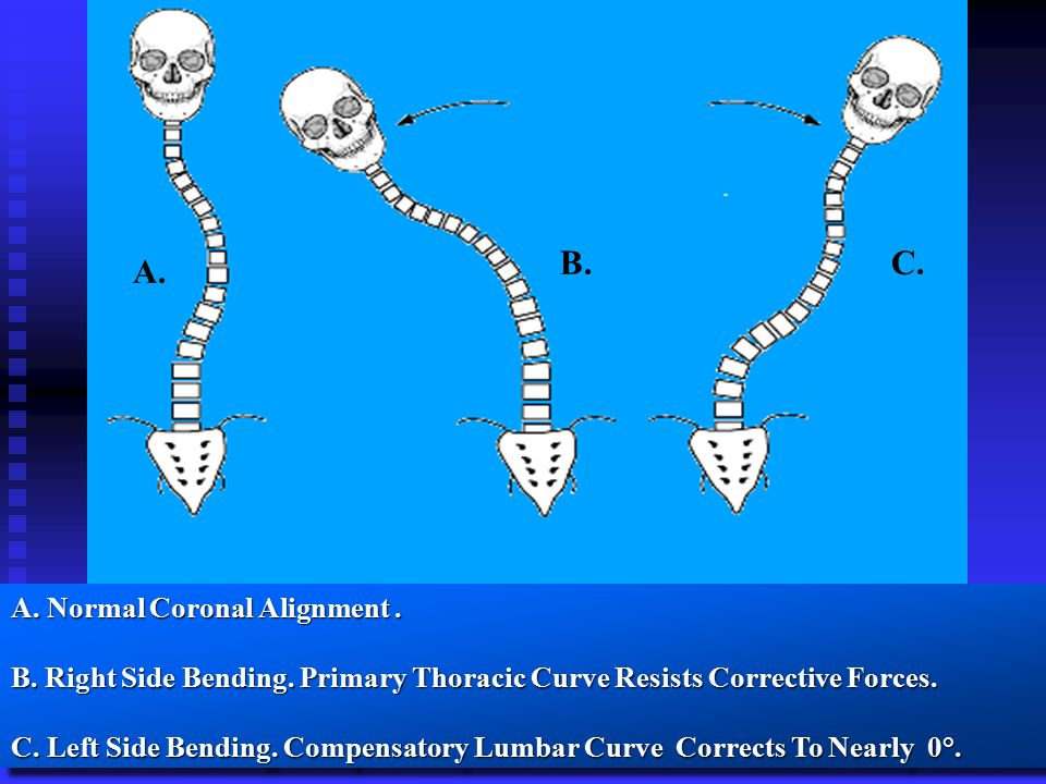 A. B.C. A. Normal Coronal Alignment. B. Right Side Bending.