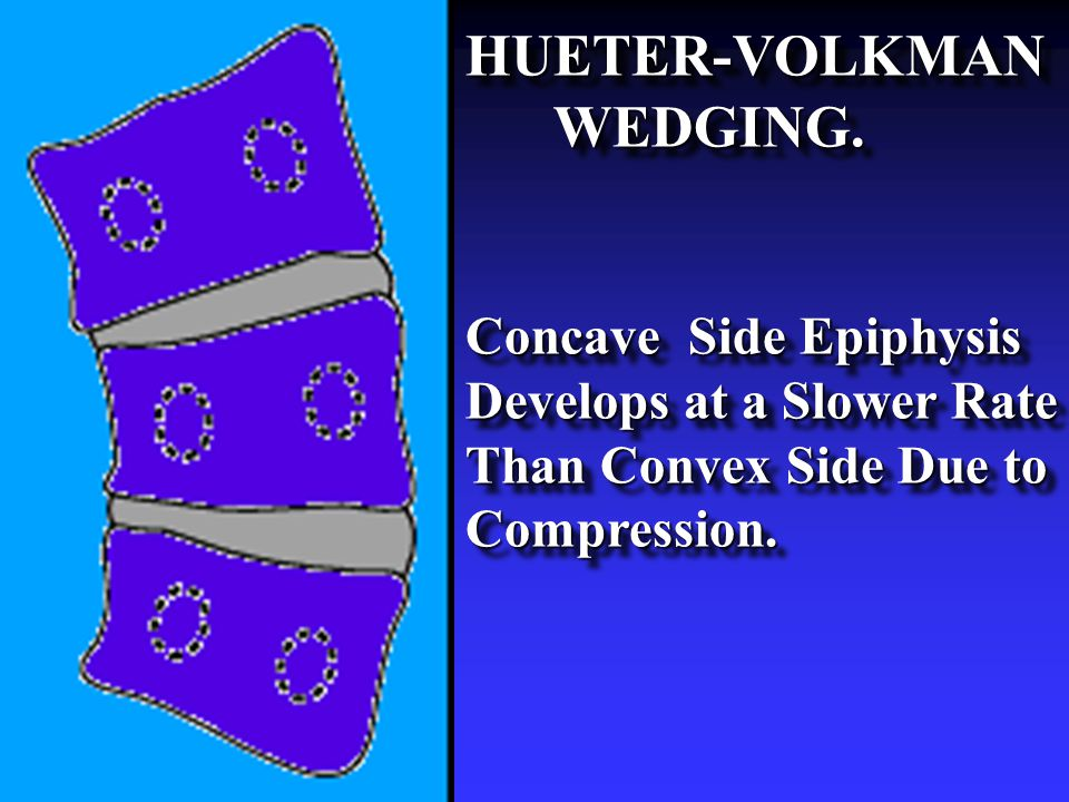 HUETER-VOLKMAN WEDGING. WEDGING. Concave Side Epiphysis Develops at a Slower Rate Than Convex Side Due to Compression. HUETER-VOLKMAN WEDGING. WEDGING