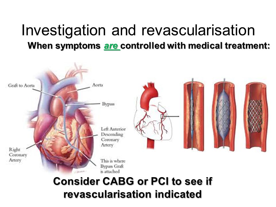 Investigation and revascularisation When symptoms are controlled with medical treatment: Discuss prognosis, likelihood of having left main stem or proximal three- vessel disease, the process and risks of investigation, the benefits and risks of CABG with person with stable angina and check they are happy to proceed.