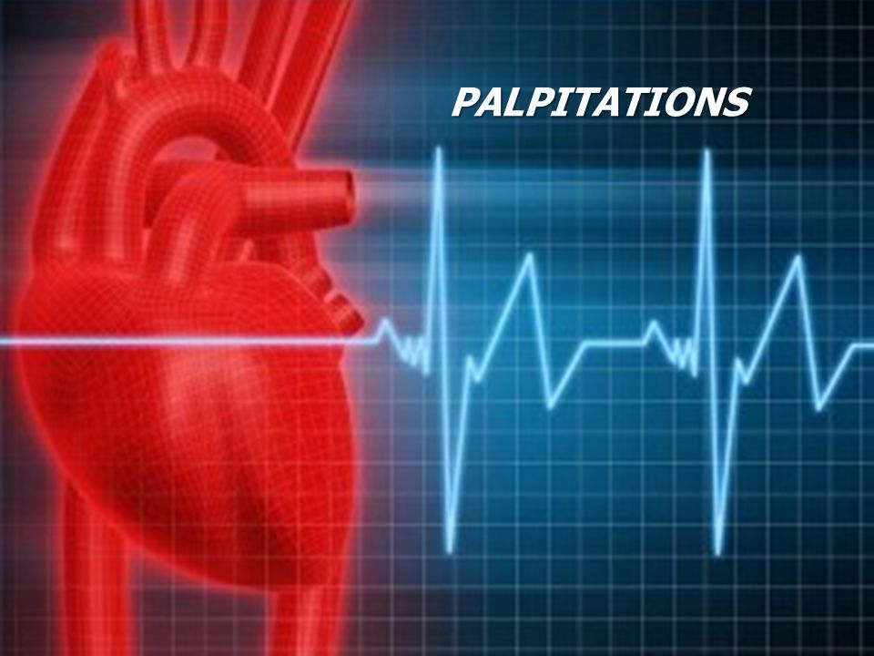 Palpitations Common presentation in General Practice Significant social impact Often benign cause Associated with considerable morbidity Nevertheless potentially lethal Chapter 8 of NSF for CHD 20
