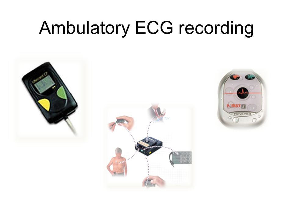 –Combined arrhythmia detection and patient activation –Up to 3 years –Device can be interrogated and data downloaded multiple times Implantable loop recorders
