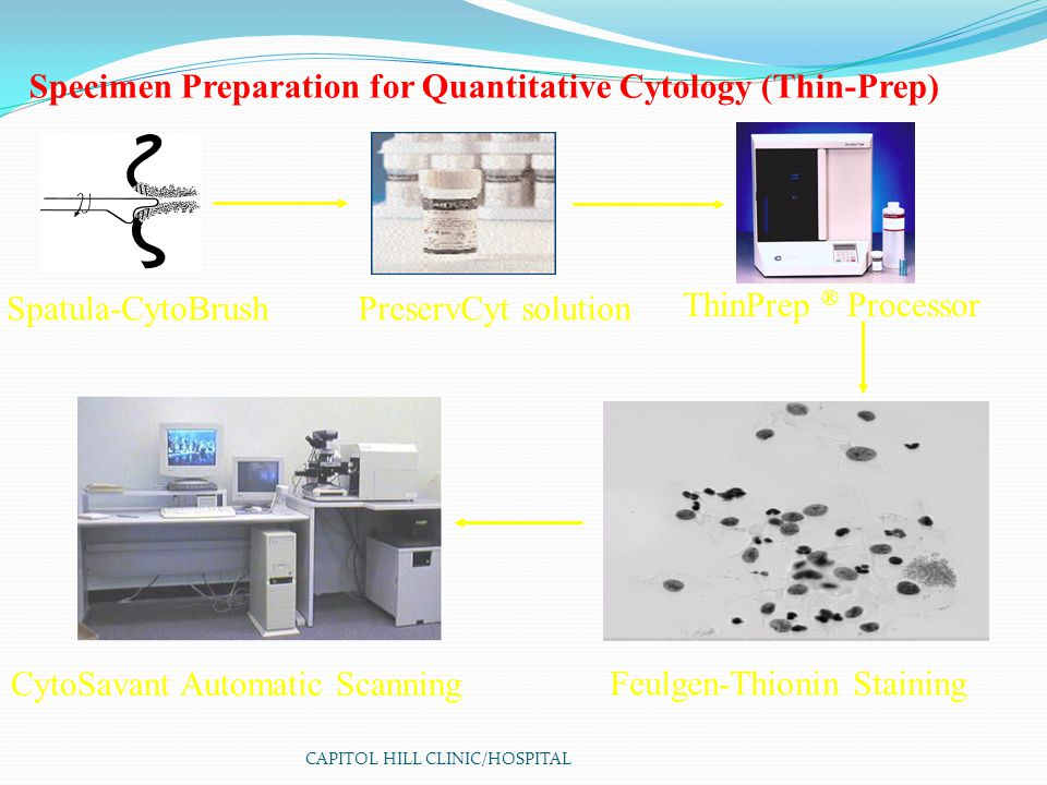CAPITOL HILL CLINIC/HOSPITAL Specimen Preparation for Quantitative Cytology (Thin-Prep) Feulgen-Thionin Staining PreservCyt solution ThinPrep ® Processor CytoSavant Automatic Scanning Spatula-CytoBrush