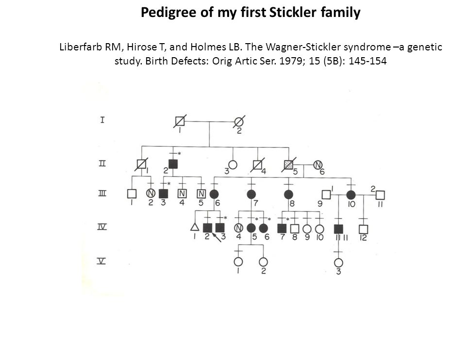 Pedigree of my first Stickler family Liberfarb RM, Hirose T, and Holmes LB. The Wagner-Stickler syndrome –a genetic study. Birth Defects: Orig Artic S