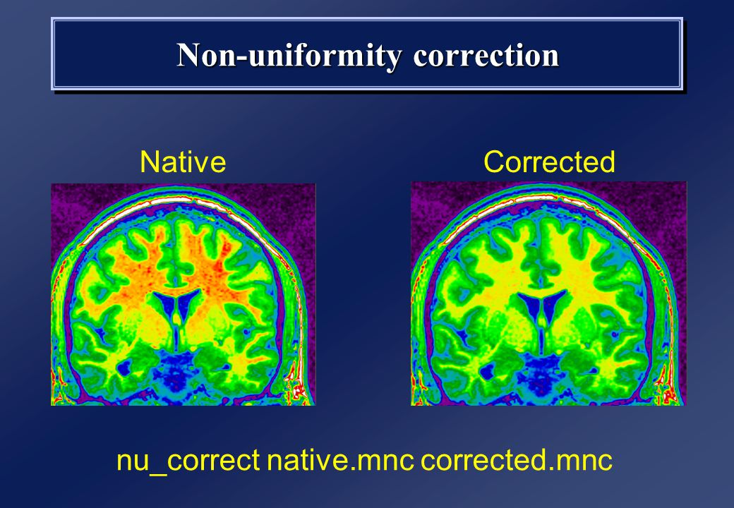 Non-uniformity correction NativeCorrected nu_correct native.mnc corrected.mnc