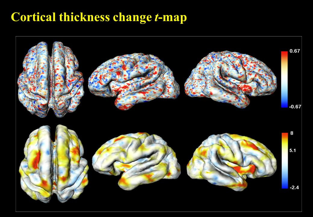 Cortical thickness change t-map