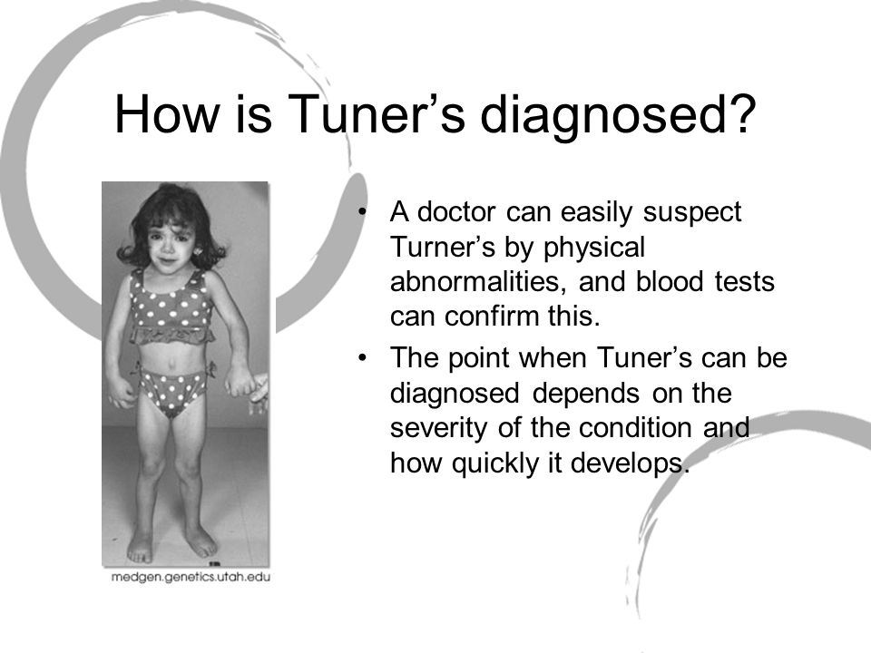 How is Tuner's diagnosed.