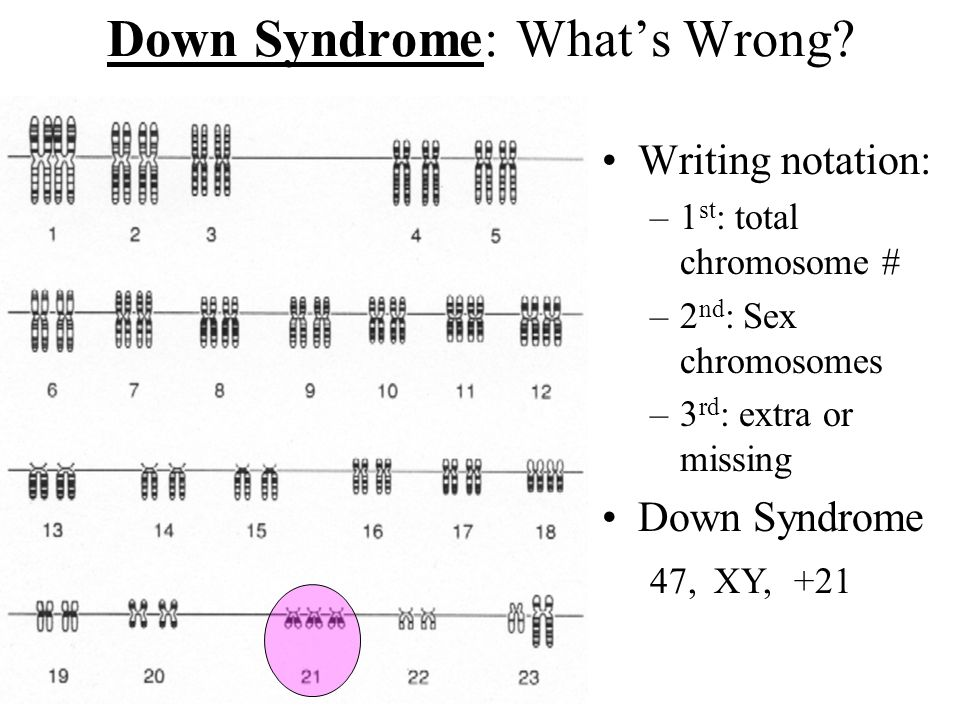 How many chromosomes would be in sperm cells? 21