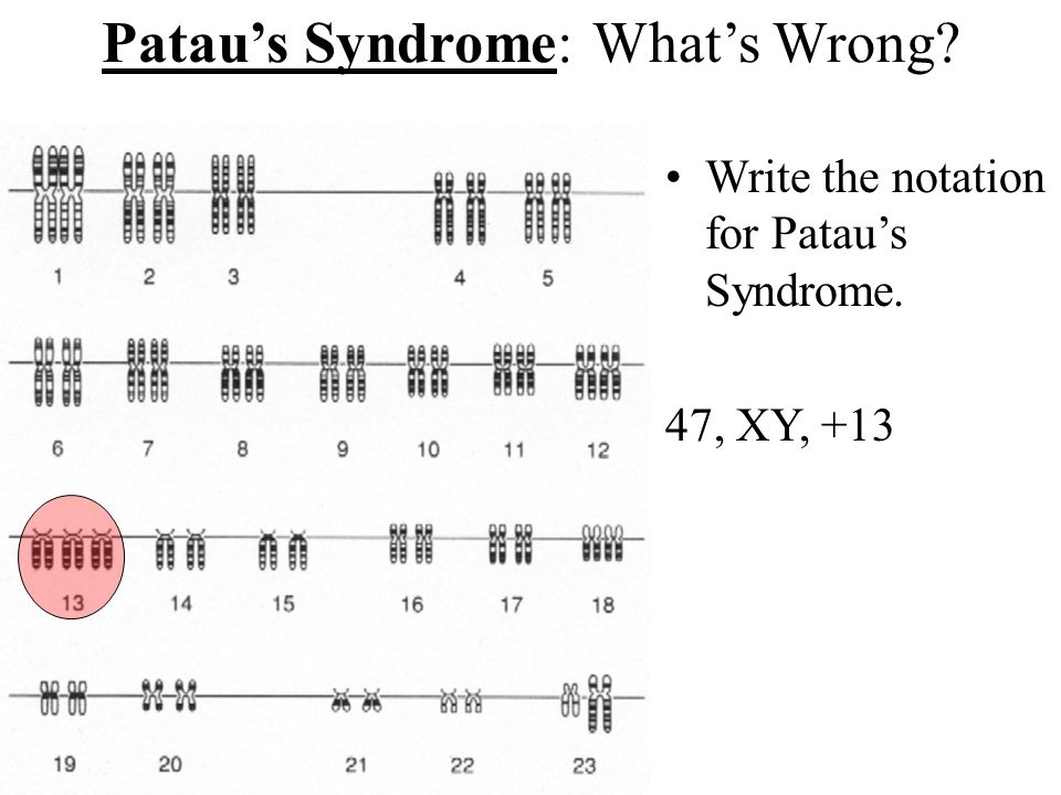 Turner's Syndrome: What's Wrong. Write the notation for Turner's Syndrome.