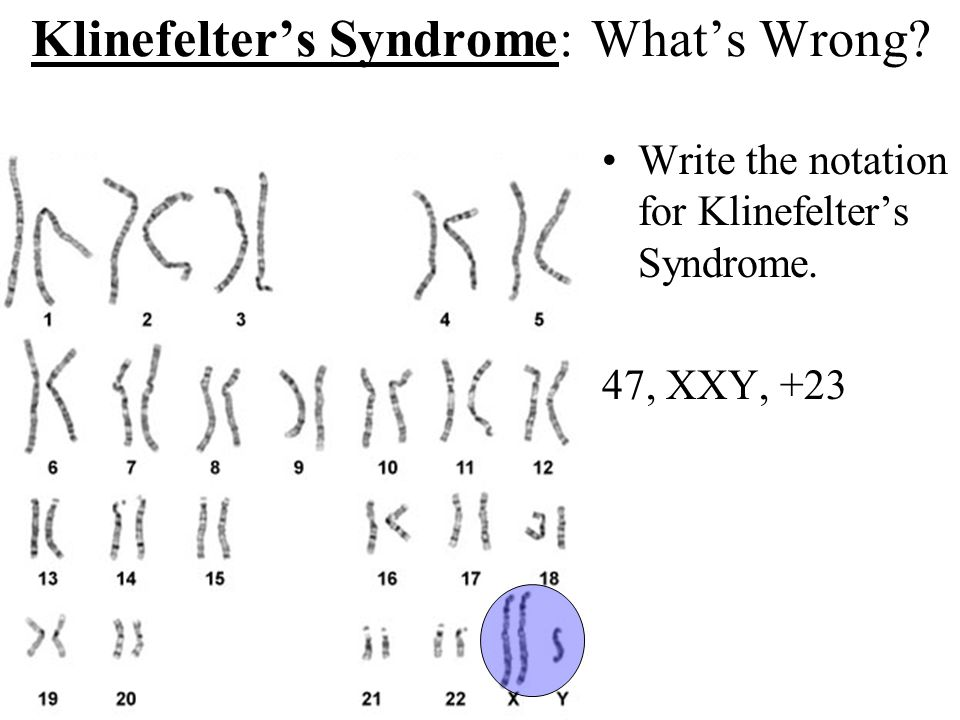 Klinefelter's Syndrome: What's Wrong? Write the notation for Klinefelter's Syndrome. 47, XXY, +23