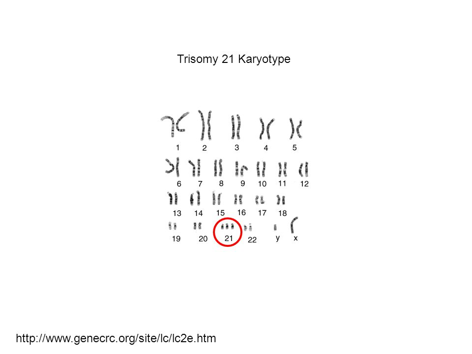http://www.genecrc.org/site/lc/lc2e.htm Trisomy 21 Karyotype