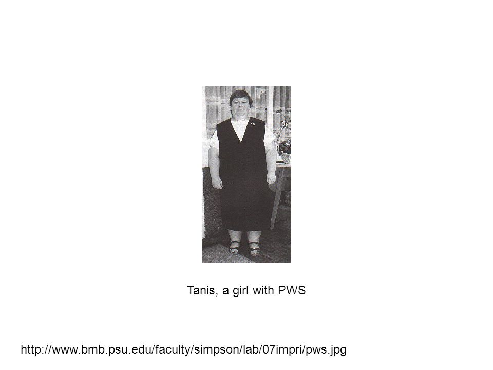 http://www.bmb.psu.edu/faculty/simpson/lab/07impri/pws.jpg Tanis, a girl with PWS